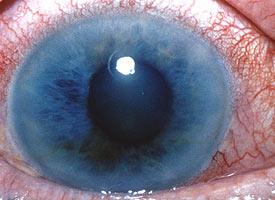 Glaucoma5.jpg