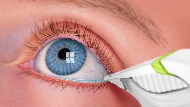 47sec-Eye.jpegt1529603802594ampwidth320ampname47sec-Eye.jpeg