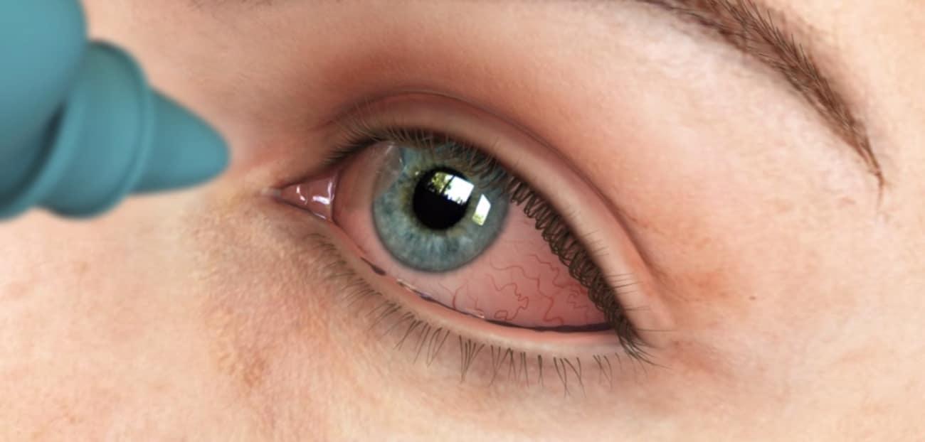 Eye_infection.jpg