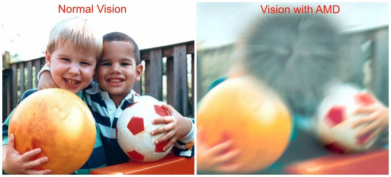 Macular-Degeneration-Photo.jpgt1529603802594ampwidth640ampnameMacular-Degeneration-Photo.jpg