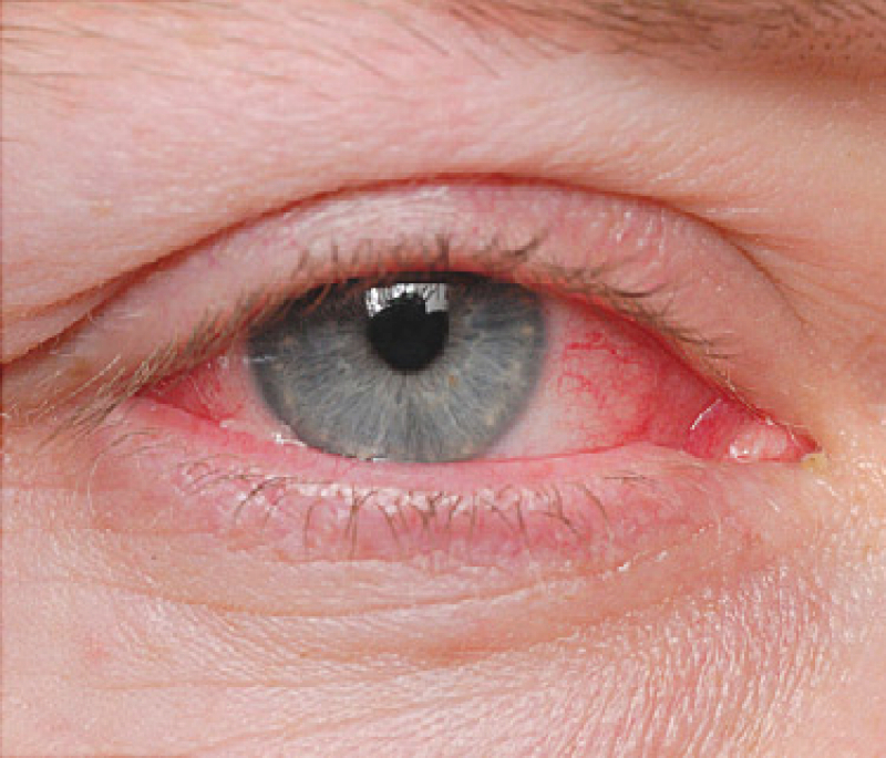 allergic-pink-eye-symptoms-treatments-symptom-relief-and-9-tips-1.jpg
