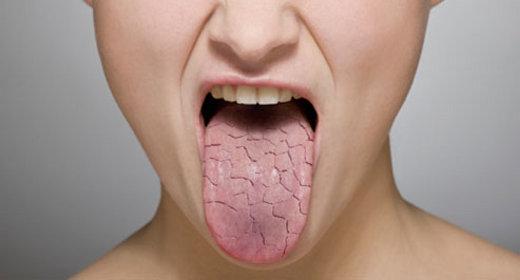 dry-mouth.jpgt1529603802594ampwidth320ampnamedry-mouth.jpg