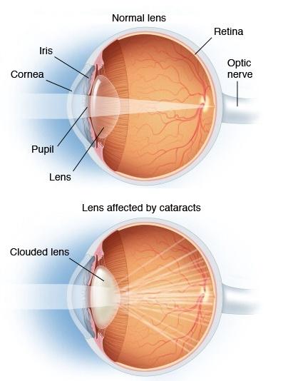 ds00050_im01864_mcdc7_cataract01_jpg.jpg