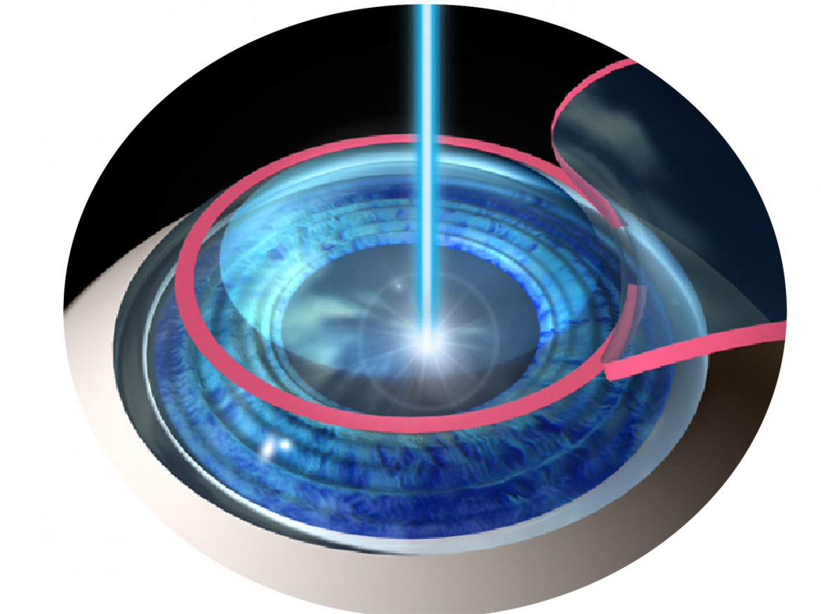 lasik-procedure00_Gaussian_smallbeam.pngt1529603802594ampwidth320ampnamelasik-procedure00_Gaussian_smallbeam.png