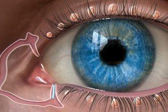 oasismed-lacrimal-glands-a-330x220.jpgt1529603802594ampwidth330ampheight220ampnameoasismed-lacrimal-glands-a-330x220.jpg